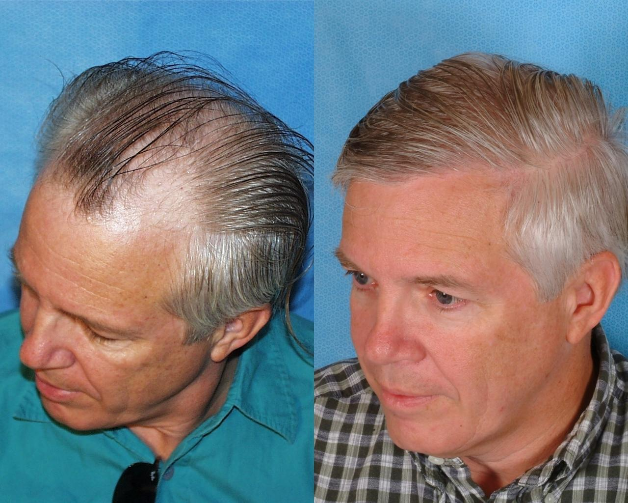 Hair Transplant Results Pg