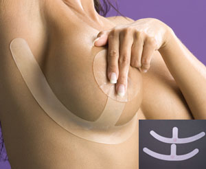 Biodermis/Epi-Derm Breast Surgery Scar Healing & Reduction Silicone Sheet Anchors (Pair) (Self-Adhesive No Areola)