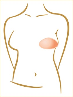 Amoena Balance Varia Partial Shaper Breast Form