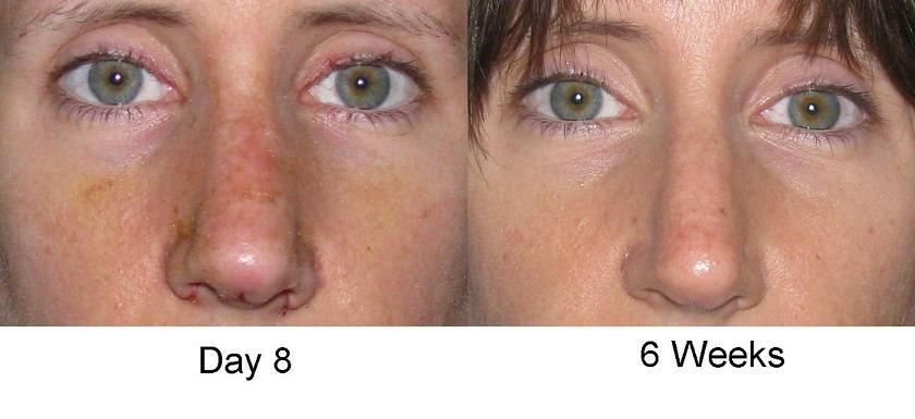 Swelling Nose Surgery Nose Job Rhinoplasty Pictures Photos